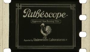 28mm-Pathescope_300